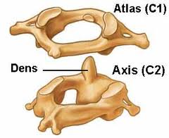 Atlas-Axis-complex